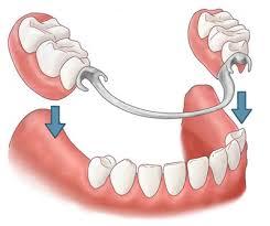 Льготное протезирование зубов чернобыльцам