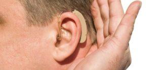 Компенсация за слуховой аппарат