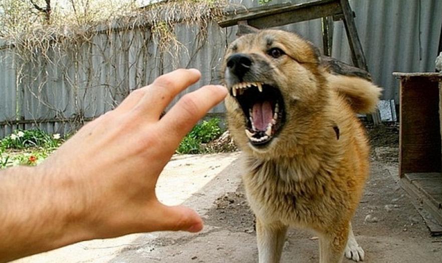 Компенсация за укус собаки